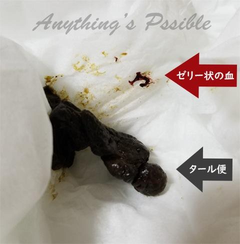 犬のタール便(黒色便)