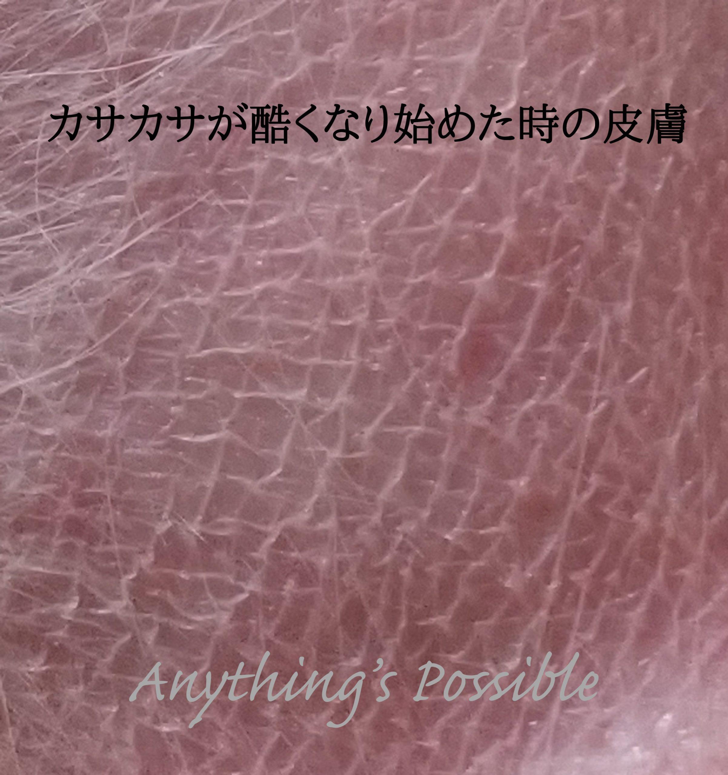 ステロイドの副作用(皮膚が薄く